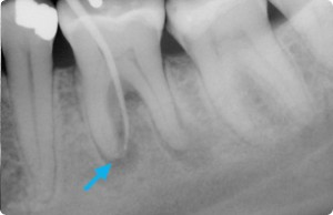 Abscess in gum.